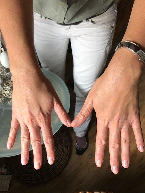 atopicky ekzem po terapii Bicom